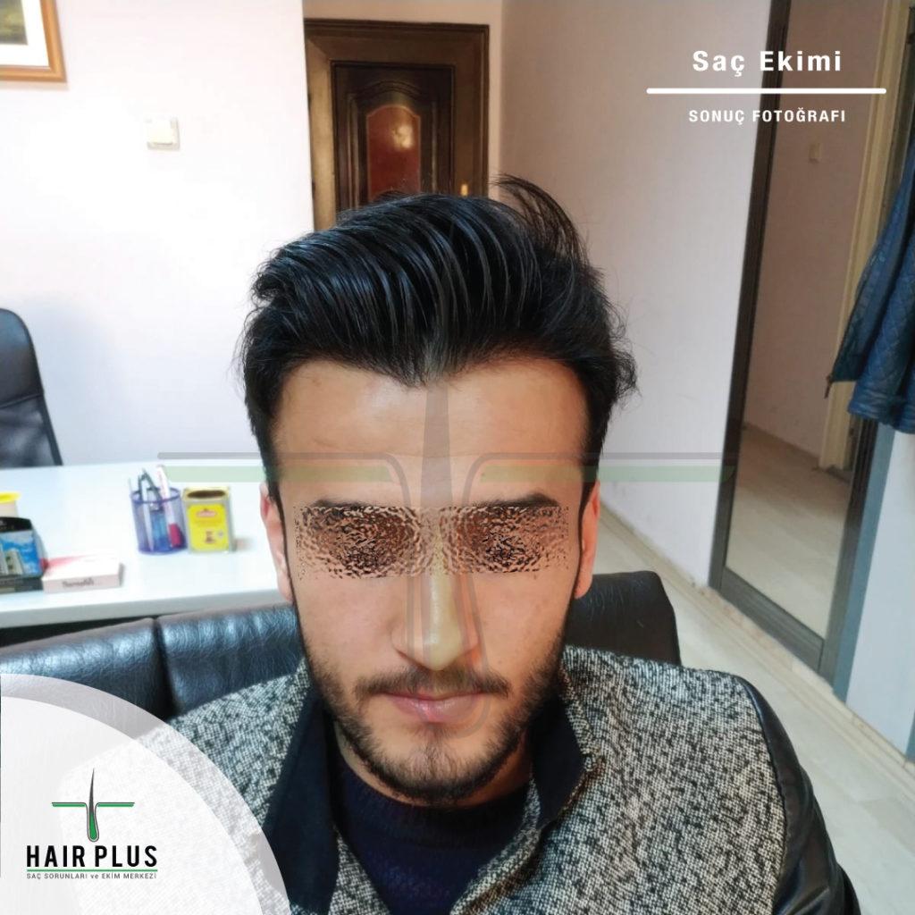 Şırnak Ayhan Bey; Saç Ekimi