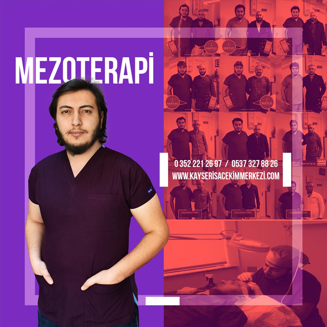 kayseri mezoterapi